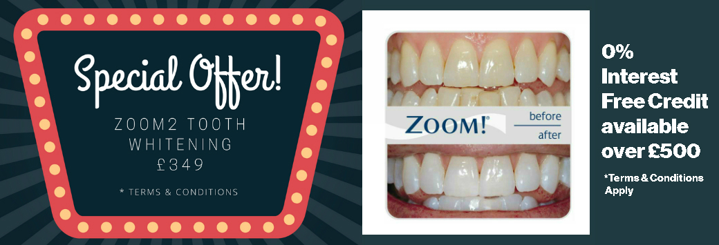 Zoom2 professional laser tooth whitening dentist in Liverpool